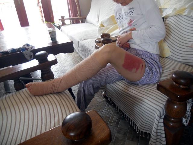 Slučaj `Zajci`: Optužnica vlasniku psa koji je u vinogradu ugrizao i teško ozlijedio ženu