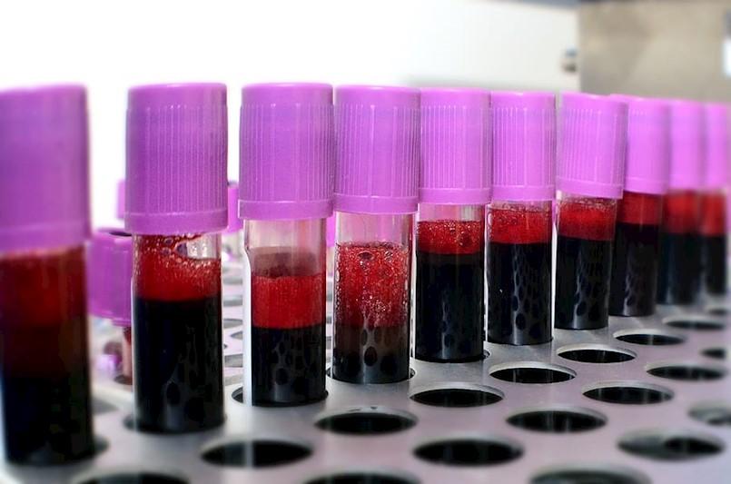 [NAJAVA] Akcija dobrovoljnog darivanja krvi 09.04. i 10.04. u OB Pula