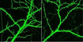 """""""Prometne gužve"""" u mozgu uzrokuju simptome shizofrenije"""