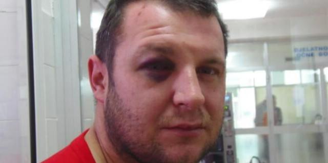 Labinjan u incidentu nakon koncerta u pulskoj Arubi