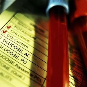Raša: besplatna kontrola šećera